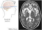 This medical exhibit pictures the brain within the outline of a male head from a lateral (side) view. The image includes a line through the head denoting the location seen on the adjacent MRI. A separate enlarged image shows a MRI of the brain, including the skull, ventricles, gray matter, and white matter.