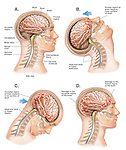 Accurate depiction of a closed head injury with a front to back whiplash motion. Shows head and brain in normal position with labels for skull, dura, brain, intervertebral discs, spinal cord, brainstem, cerebellum and occipital region. Stages of injury: 1. Head and neck in hyperextension with frontal region impacting the inner surface of the skull; 2. Head and neck in hyperflexion with the occipital region impacting the skull; and 3. Resulting brain damage to the frontal and occipital regions of the brain.