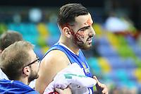 Mahir Agva (Fraport Skyliners) hat sich verletzt und blutet,  - 08.11.2016: Fraport Skyliners vs. CEZ Nymburk, BCL, Fraport Arena Frankfurt