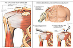 Right Shoulder Impingement Syndrome with Decompression Surgery.