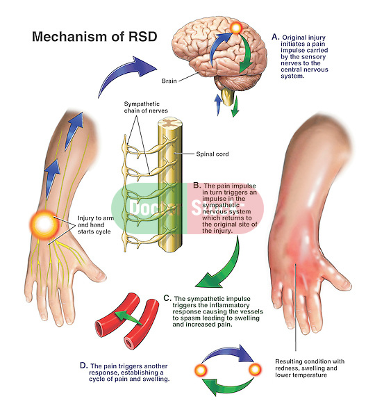 Post-traumatic reflex sympathetic dystrophy (RSD) of the upper extremity followed by a sympathectomy (surgical removal of portions of the sympathetic chain ganglia). In this case, RSD originates in the hand, follows a course to the brain, and triggers a sympathetic inflammatory response in the hand, resulting in pain, swelling and skin mottling. We see the location of the sympathetic chain ganglia alongside the spine with a section of the gangla removed from vertebral levels T6, T7, T8 and T9.