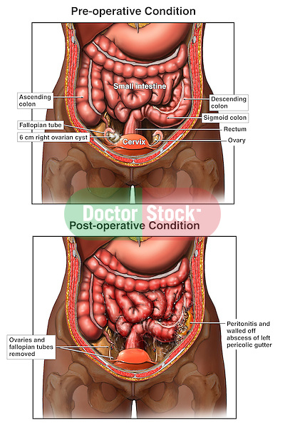 Post-operative Peritonitis