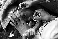 Kalma IDP camp, South Darfur, July 29 2004.Abacar Abdallah, 25 months old,, on his mother lap. He suffers from severe malnutrition, weighing at only 5,2kg. Despite desperate last minute efforts by the MSF medical staff to save him, he was sinking fast and died seconds after this photo was taken. He is one of 2000 children in the MSF emergency nutrition program in this camp.