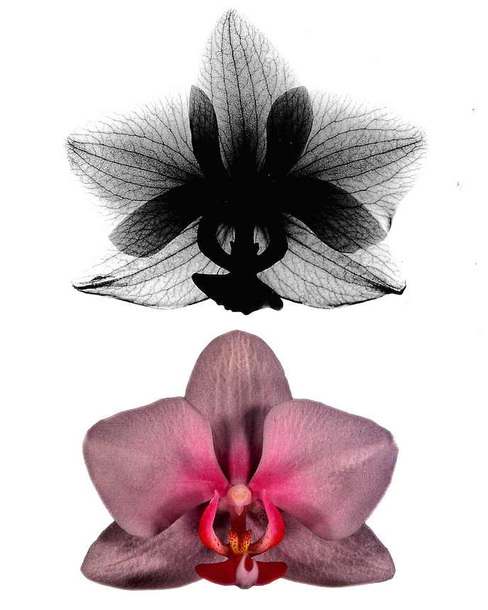 Xray Orchid montage