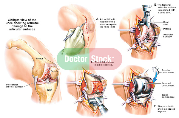 Accurately depicts a total left knee joint replacement surgery from the surgeon's perspective. An orientation image shows the arthritic damage to the articular surfaces of the femur, patella, tibia, and meniscus. The surgical procedure depicts an incision exposing the knee joint; resection of the femoral articular surface and the tibial plateau; and securing the artificial knee joint prosthesis (prosthetics), including the patellar, femoral, and tibial components. .