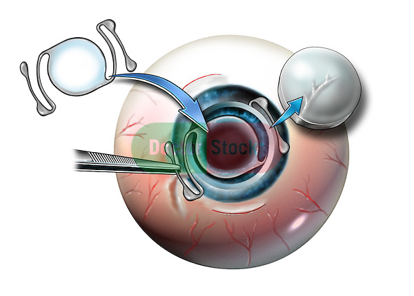 IOL anterior chamber intraocular lens and cornea replacement with a donor cornea