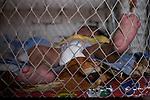 2015-03-04. UN ÁNGEL CON LAS ALAS PEGADAS. © Calamar2/Susana HIDALGO & Pedro ARMESTRE<br /> <br />   Ángel César Alonso, de 10 meses, nació por cesárea en Chiclayo (Perú) y los médicos le diagnosticaron síndrome de Apert, una enfermedad genética que afecta a la forma de la cabeza y que hace que el pequeño tenga los ojos abultados y padezca sindactilia (los dedos de las manos y de los pies pegados). El síndrome de Apert es una de las 7.000 enfermedades raras que existen en el mundo y su prevalencia oscila entre 1 y 6 casos por cada 100.000 nacimientos. La historia de este bebé es la historia de unos padres coraje, César Cruz y Edita Jiménez, que se desviven para que el pequeño pueda tener la mejor calidad de vida posible. César y Edita acudieron el pasado mes de marzo junto a su bebé al hospital San Juan de Dios, en Chiclayo, al reclamo de una campaña solidaria de intervenciones quirúrgicas organizadas por la Sociedad Española de Cirugía Plástica, Reparadora y Estética (Secpre) y la ONG Juan Ciudad. Los cirujanos españoles le operaron las manos para separar unos dedos de otros. La intervención duró aproximadamente una hora y media y el pequeño necesitó de curas posteriores.<br /> La operación fue el primer paso en la mejora de la salud de Ángel. Necesitará al menos otra más para separar los dedos de los pies. Sus padres son humildes y apenas tienen recursos.  César, el padre, trabaja levantando casas de adobe. Edita, la madre, vive para su hijo y le gustaría en un futuro retomar su profesión de enfermera. © Calamar2/Pedro ARMESTRE<br /> <br />  AN ANGEL WITH THE WINGS ATTACHED. © Calamar2/Susana HIDALGO & Pedro ARMESTRE<br /> <br /> Angel César Alonso was born in Chiclayo (Peru) and was diagnosed with Apert syndrome, a genetic disease that affects the shape of the head and makes him having eyes bulging and suffering syndactyly (the fingers and feet flat). The story of this baby is the story of parents courage: Edita César Jiménez Cruz, who are fighting everyday to gi