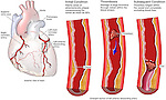 This exhibit depicts acute coronary thrombosis. showing a front view of the heart with an enlargement of the left anterior descending (LAD) coronary artery. This typically results in a myocardial infarction, or heart attack.