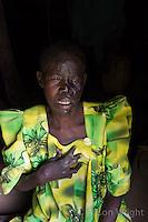 Kitgum patient, Dorothea Akello