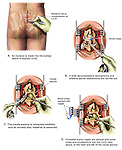 Back Surgery - L5-S1 Laminectomy, Partial Facetectomy and Spinal Fusion Procedure.