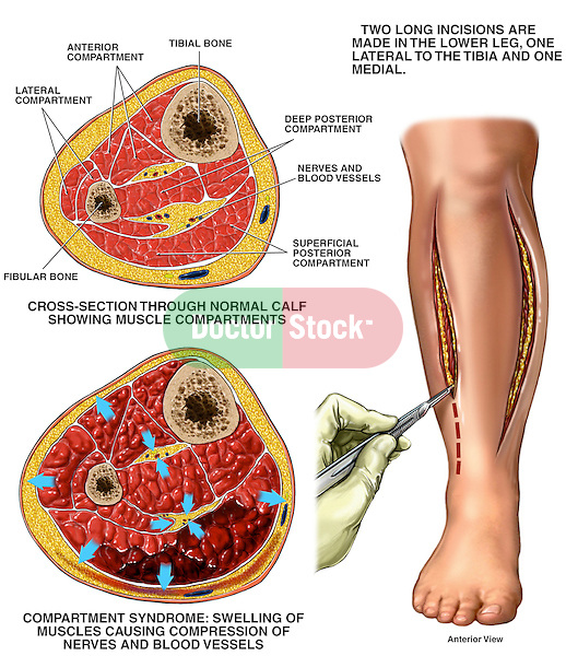 This medical exhibit pictures compartment syndrome of the right lower leg with fasciotomy procedures in a series of three illustrations. The first illustration displays a transverse cross-section through a normal lower leg. The second illustration pictures a transverse cross-section through a lower leg suffering from compartment syndrome. The final image illustrates a fasciotomy surgical procedure.