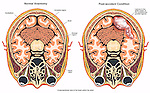 Post-accident Brain Damage (Injury) with a Lesion in the Occipital and Parietal Regions.