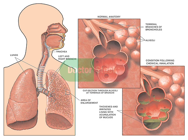 Respiratory System - Chemical Inhalation Resulting in Lung Damage.