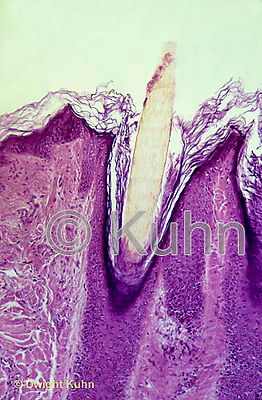 CZ08-001c  Scalp - old skin flaking off, hair follicle with hair, dark blue epithelium cells  100x