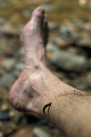 Leech on photographer's leg in rainforest at Gunung Mulu National Park, Malaysia, Borneo, Sarawak