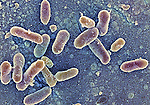 Salmonella enteritidis bacteria, causes salmonellosis, typhoid fever, food poisoning, 18,000x magnification