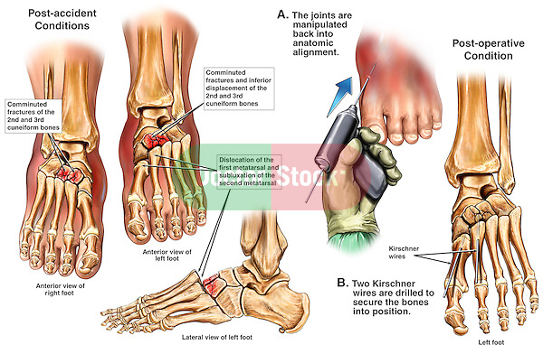Bilateral Foot Fractures with Surgical Fixation of the Left Foot.