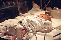 Premature infant in a high dependency intensive care cot in a special care baby unit. This image may only be used to portray the subject in a positive manner..©shoutpictures.com..john@shoutpictures.com