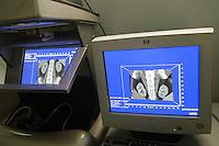 "- Orthopaedic Institute Galeazzi, console for the analysis of the images of diagnostic radiology in 3D ""Dextroscope""  ....- Istituto Ortopedico Galeazzi, consolle per l'analisi delle immagini di radiologia diagnostica in  3D ""Dextroscope"""