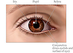 This medical exhibit pictures a realistically drawn anterior (front) view of the eye with labels for the iris, pupil, sclera and conjunctiva.  Labels can be added or removed based on customer preference.
