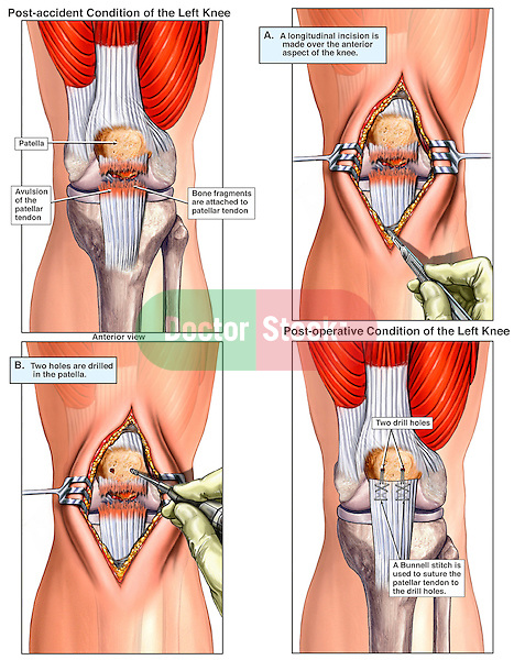 Knee - Patellar Injury and Surgical Fixation. This full color medical exhibit depicts an avulsion of the patellar tendon with surgery. The exhibit consists of four images. The first image shows the injury. The subsequent three images show the surgical repair of the injury.