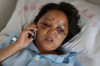 33 year old Ling Xiumer recovers in the Number 2 Hospital in Urumqi. She was beaten by a Uighur mob on July 5th. Ethnic violence between the Uighur and Han Chinese erupted in the city a few days earlier..