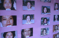 Photos of women who underwent cosmetic surgery are displayed for advertising outside a hospital, Shenzhen, China. As the Chinese population grows richer more and people are turning to cosmetic surgeons for nose, eye and breast jobs...PHOTO BY SINOPIX