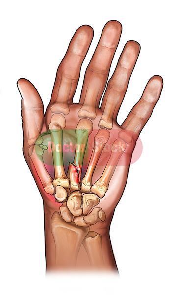 Third Metacarpal Fracture; this medical illustration reveals a fracture to the third metacarpal fracture.