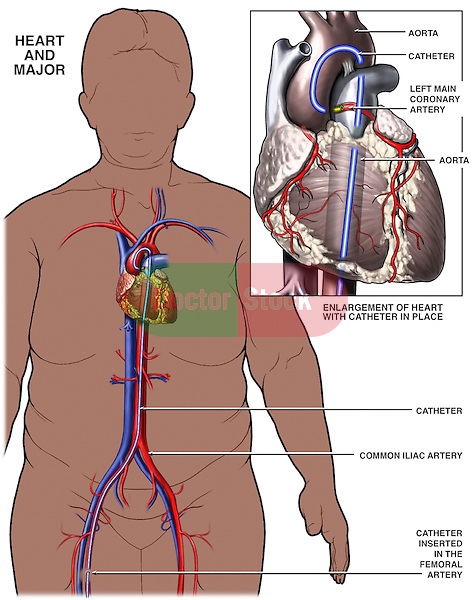 This full color medical-legal chart depicts the path for insertion of a cardiac catheter for performing a coronary angioplasty surgery. It features an anterior (front) overview image of a female silhouette with insertion of a catheter into the right femoral artery, up the abdominal aorta and into the heart. A single detailed view of the heart shows the final catheter placement looping through the aorta and into the left main coronary artery.