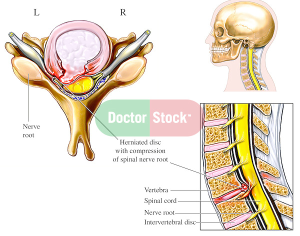 This illustration depicts cervical disc herniation with spinal cord and nerve root impingement (compression) in the region of the lower neck. The herniated intervertebral disc protudes posteriorly (toward the back), impacting the neural elements.
