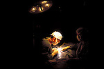 ophthalmologist performing eye surgery