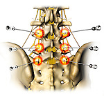 This stock medical image features a single posterior view of the low back, pelvic bones and spinal nerves, revealing bilateral placement of Radio Frequency (RF) spinal needles.