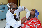 Dental care at Gisenyi District Hospital,.Northwest Rwanda....