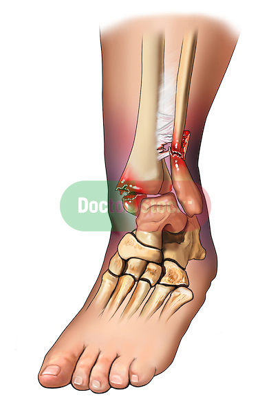 Bimalleolar fracture, syndesmosis disruption and malalaignment of ankle mortise