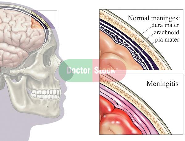 Bacterial Meningitis (Brain Covering Infection).