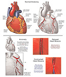 Anatomy of the Heart with Abnormal (Anomalous) Intramuscular Coronary Artery