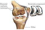 Total Knee Joint Replacement Surgery. This illustration features a single surgical view of the bones of the left knee showing the placement of a femoral component in a knee replacement. Specifically labeled are; Femoral surfaces removed, femoral component and tibia.