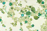 microscopic photo of pollen