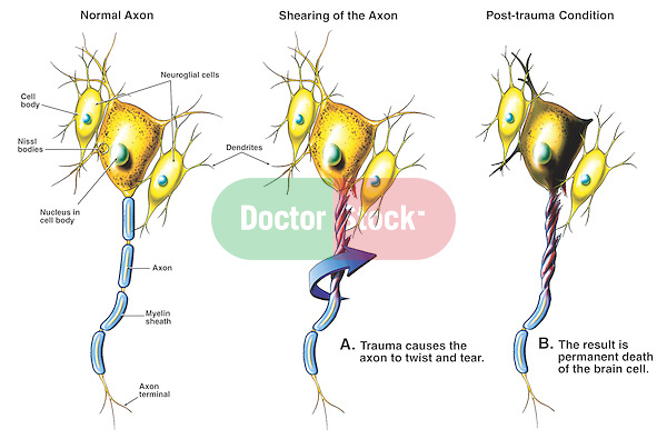 Accurately depicts neurons (brain cells) subject to axonal shearing, or post-concussion syndrome.  The first illustration pictures a normal neuron with labels for the nerve cell body, Nissl bodies, nucleus, neuroglial cells, axon, dendrites, myelin sheath and axon terminal.  The second illustration depicts trauma causing twisting and tearing of the neuronal axon. The third illustration shows the post-trauma condition with death of the brain cell.