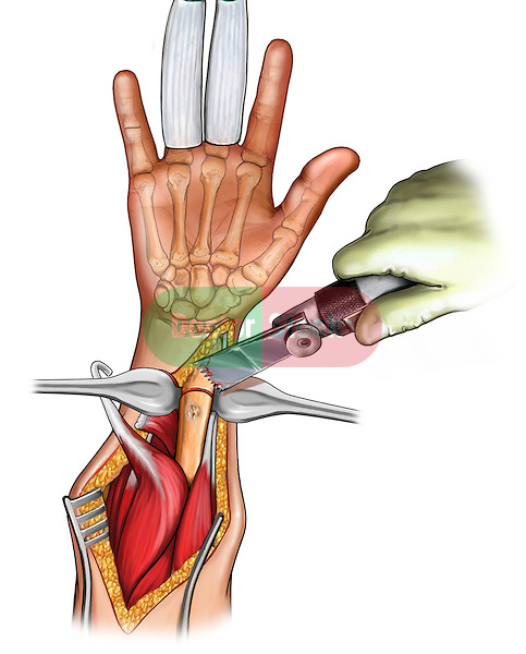 Osteostomy-wrist surgery; depicts an palmar view of the forearm and hand An incision is made to expose the radius The osteostomy is being performed with a saw removing a piece of the radius