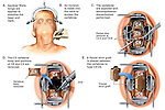 Cervical Spine Injury - C4-5, C5-6 Herniated Discs with Anterior Discectomy and Spinal Fusion Surgery. This medical illustration series shows surgical steps from an anterior cervical corpectomy and fusion. Surgical steps show the following: 1. Incision with placement of the head and neck in traction with Gardner Wells tongs, 2. Discectomies at C4-5 and C5-6,3. Corpectomy (vertebral body removal) of C5, and 4. Fibular strut graft placement for fusion of C4-C6.