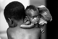 Mozambico, Africa, bambini denutriti a Mocuba, centro dei Medici senza Frontiere