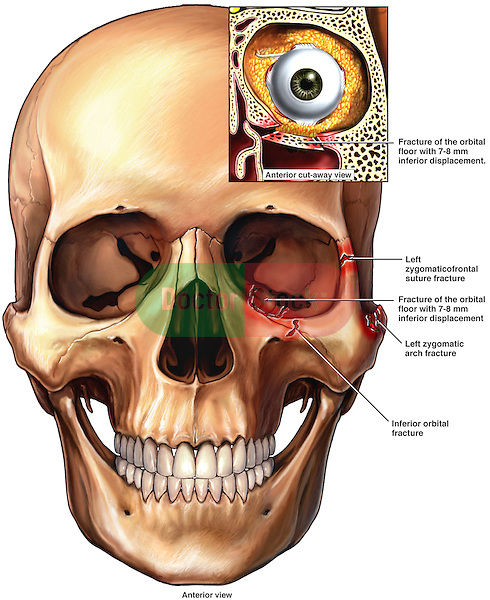 This full color medical illustration pictures an anterior (front) view of the skull with fractures of the left orbital floor extending into the maxillary sinus. It features an inset of the left eyeball within the orbit in coronal (anterior cut-away)The orbital contents are blown out (displaced) inferiorly into the sinus. Other fractures shown: left zygomatical frontal suture fracture, left zygomatic arch fracture, inferior orbital fracture.