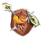 The omentum is stitched to the liver to control bleeding from a grade 4 laceration.