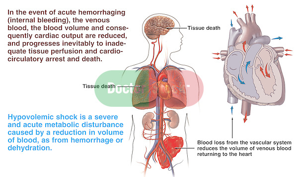 This medical exhibit depicts the sequence of events leading to death in hypovolemic (low blood volume) shock.