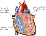 This medical exhibit diagram depicts an anterior (front) cut-away view of the heart with the components of the cardiac conduction system.  Labeled items include: the Sinoatrial (SA) Node, or pacemaker of the heart; the Atrioventricular (AV) node; and the Atrioventricular Bundle, or Bundle of HIS.