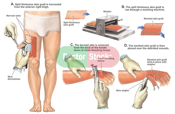 Burns - Skin Graft (Transplantation). Graphic depiction of skin graft surgey using the following surgical steps: A. Surgeon uses a dermatome to harvest a split thickness skin graft from the thigh; B. The skin graft transplant is run through a mesher machine to expand the tissue; C. Right arm and hand display the burned eschar tissue being shaved off  with a Weck knife back to fresh bleeding tissue; D. Application of the meshed split thickness skin grafts with a skin stapler.