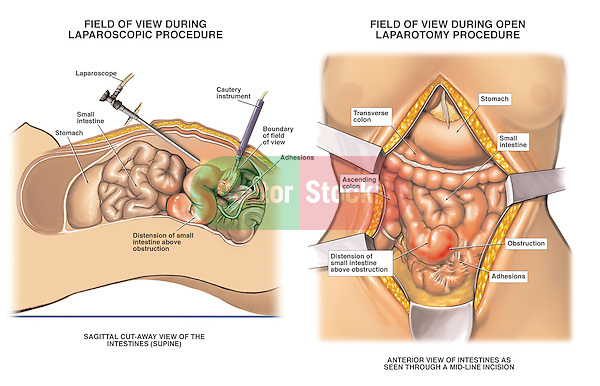 This surgical exhibit compares and contrasts the differing operative field of view during an arthrosopic surgery versus that of an open laparotomy. It is designed to emphasize the expanded field of view and full appreciation of pathology that is made available through the larger traditional laparotomy incision.