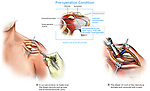 ACL (Acromioclavicular) Joint Arthritis with Surgical Repair.