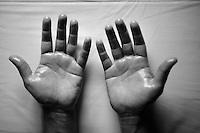 soigneur Joachim Schoonacker's (BEL) hands after work<br /> <br /> 2015 Tour de France<br /> Orica-GreenEDGE restday 2 in Gap